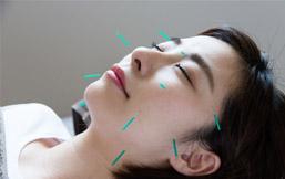 美顔の鍼灸